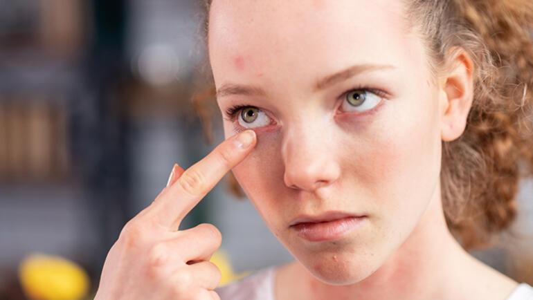 10 ila 20li yaşlarda göz numarasının sık değişmesine dikkat