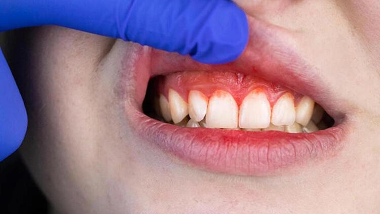 Covid-19 geçirenlerde diş kayıpları var