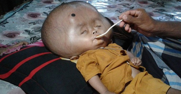 Küçük çocuğun kafası tam 9 kilo ağırlığında