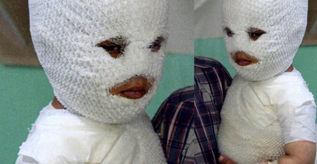 2 yaşındaki çocuk süt kazanına düşerek fena şekilde yandı