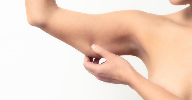 Sallanan yarasa kollara izsiz sıkılaştırma operasyonu