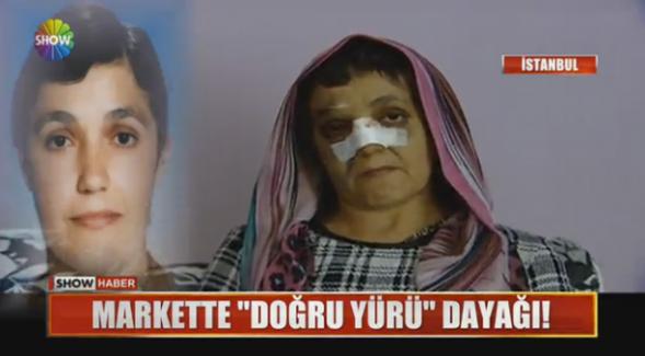 """""""Markette düzgün yürümüyorsun"""" dedikten sonra 53 yaşındaki kadını dövdü"""