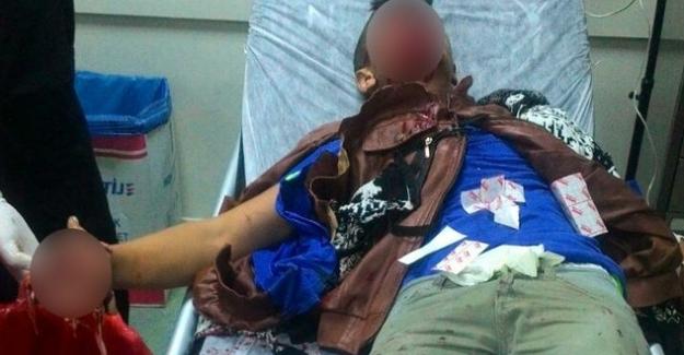 Polise atmak istediği patlayıcı elinde infilak etti