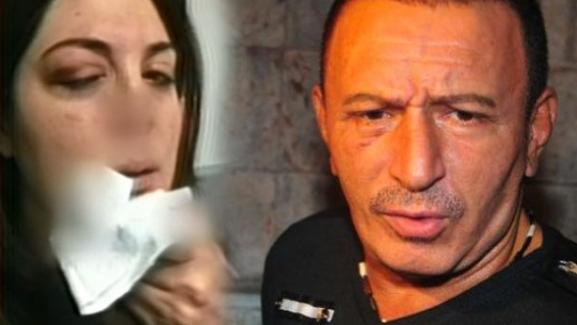 Medeniyetsiz Uzaylı! Mustafa Topaloğlu eşini hastanelik etti