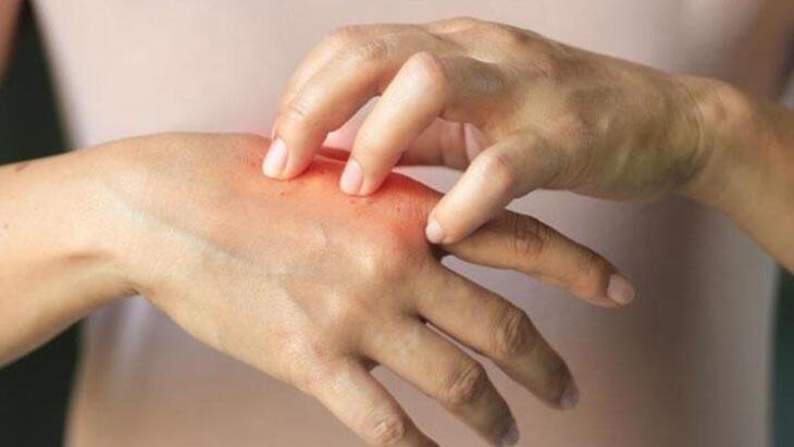 Alerji Hastalıkları Tedavisi Nasıl Yapılır? Alerjik Hastalıklar Tamamen İyileşir Mi?