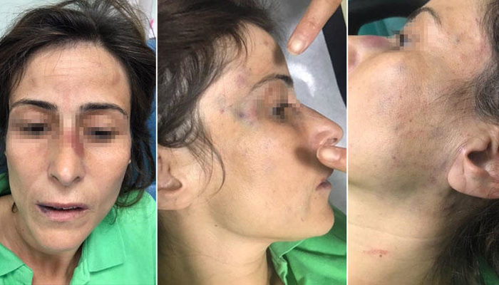 Ankara'da doktor çiftin şiddet davasında flaş gelişme! İşte eşinin kemiklerini kıran doktorun cezası...