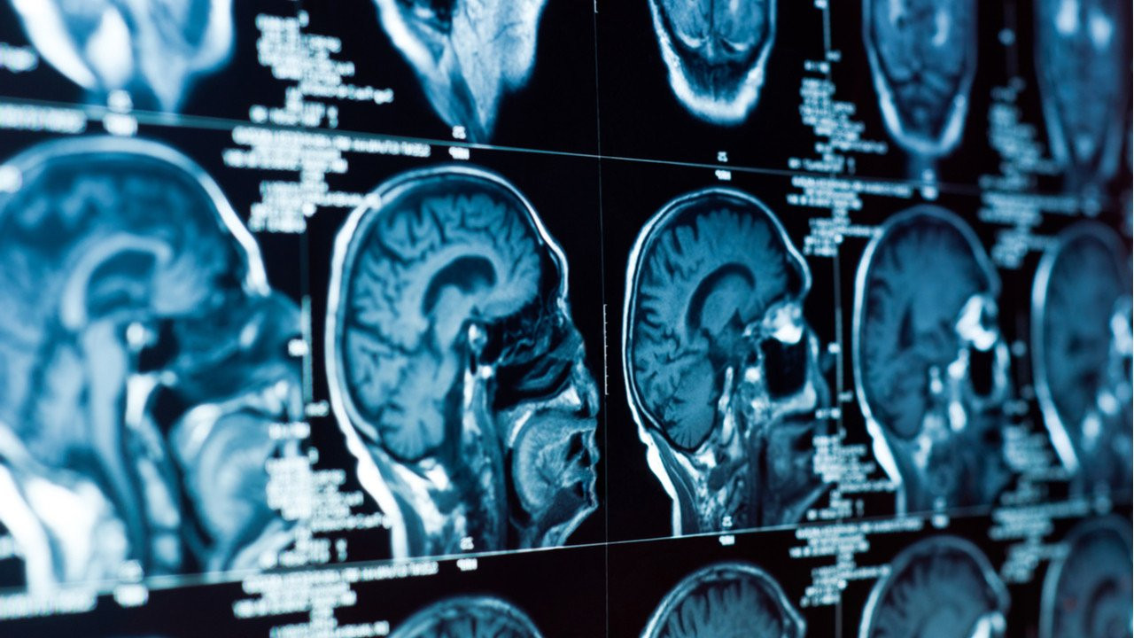 CT taramalarıyla beyin kanamalarını teşhis eden Aidoc, 66 milyon dolarlık yatırım turunu tamamladı