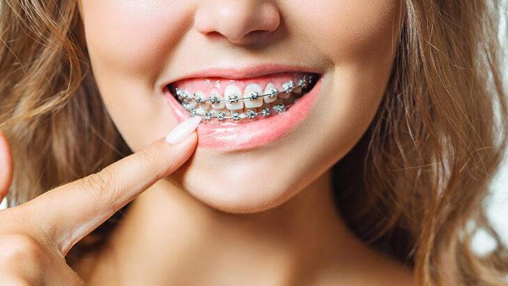 Diş telleri hakkında doğruymuş gibi kabul edilen efsaneler