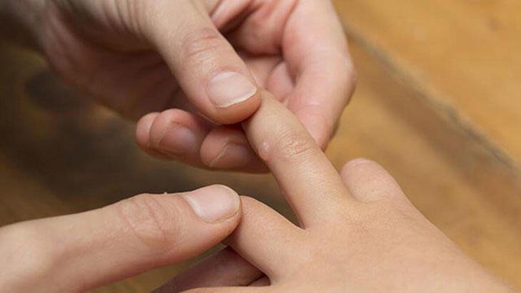 El Ayak Ağız Hastalığı Belirtileri Nelerdir? El Ayak Hastalığının Tedavi Yöntemleri Nelerdir?