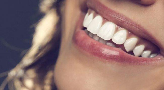 Ortodontik tedavilerde sağlam dişler neden çekilir?