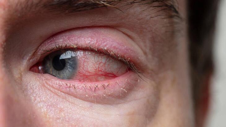 Retina Dekolmanı Nedir? Retina Yırtılması (Dekolmanı) Neden Olur, Nasıl Tedavi Edilir?