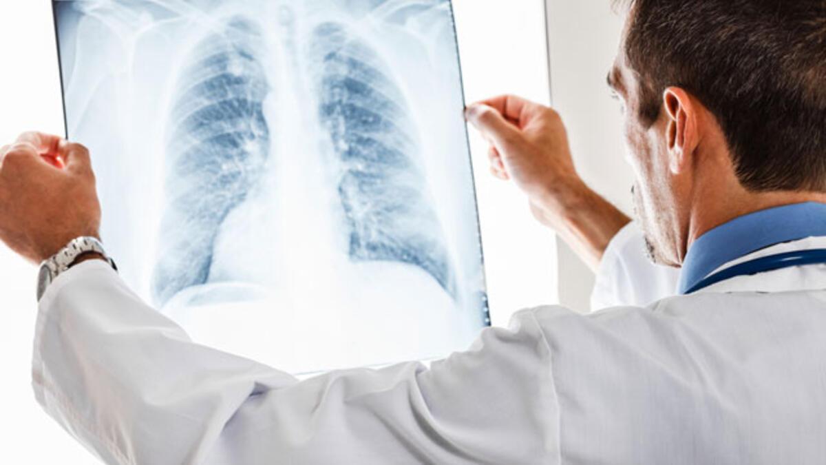Akciğerde Leke Nedir? Akciğer Lekesi Neden Olur, Belirtileri Nelerdir?