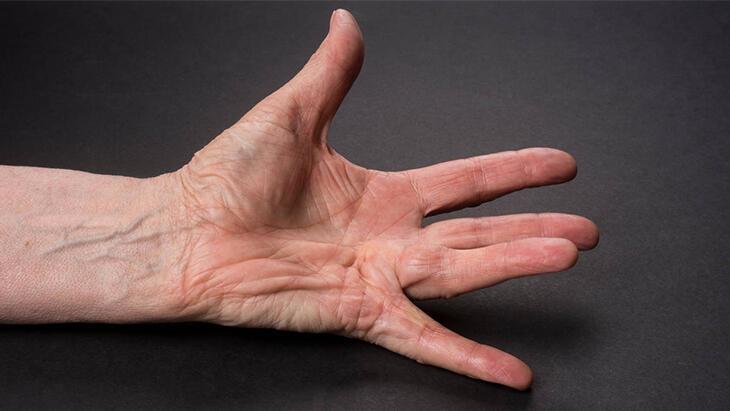 Dupuytren Kontraktürü Nedir, Belirtileri Nelerdir? Dupuytren Hastalığı Tedavisi Nasıl Yapılır?