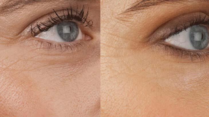 Göz çevresinde kaz ayakları neden oluşur?