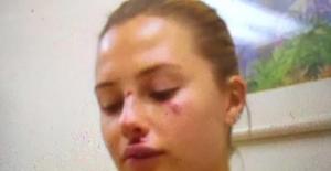 'Serdar Ortaç'ın eşi Chloe Loughnan dayak yedi' iddiası