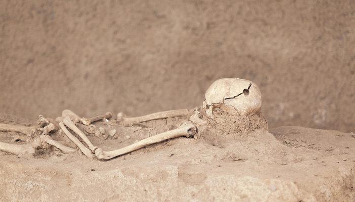 Tarihi değiştiren keşif! Dünyanın ilk ameliyatı Göbeklitepe'de yapıldı